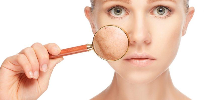 Conffianz reduce las manchas en la Piel | Tipos y Causas de Manchas en la Cara